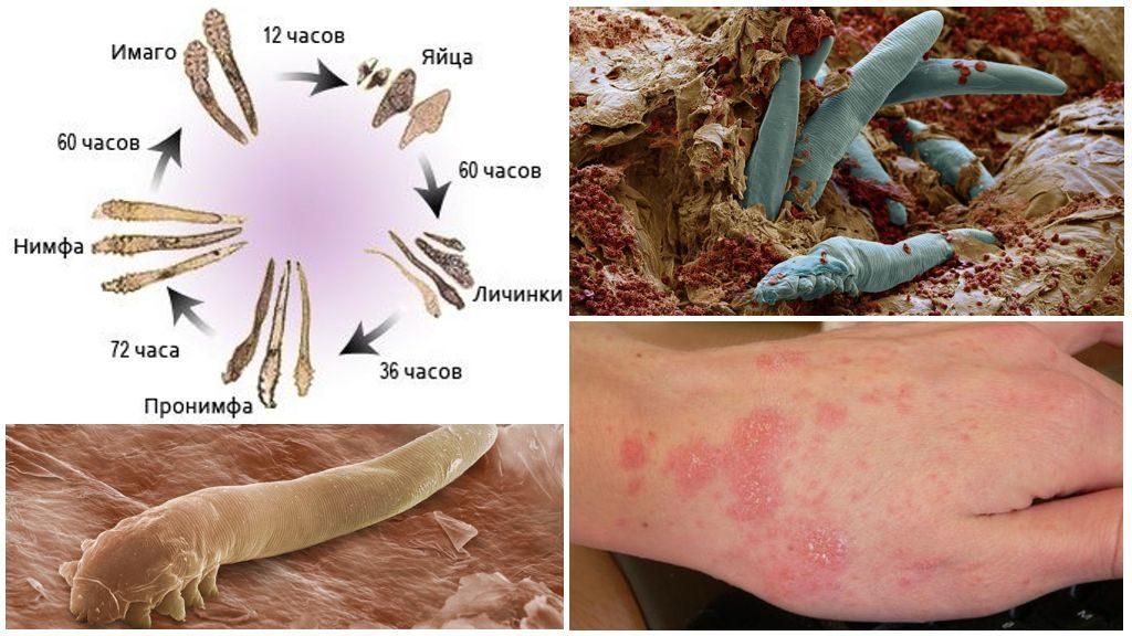 Подробный обзор вредителя Демодекс: что это, фото насекомого, фазы развития, наносимый вред, симптомы заражения, протекание болезни, методы лечения
