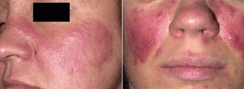 Особенности лечения демодекоза на лице: самые действенные способы, диагностика, как вылечить