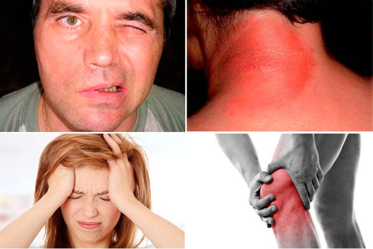 Способы заражения и симптомы болезни лайма: как возникает боррелиоз, признаки, побочные проявления, методы лечение, профилактика