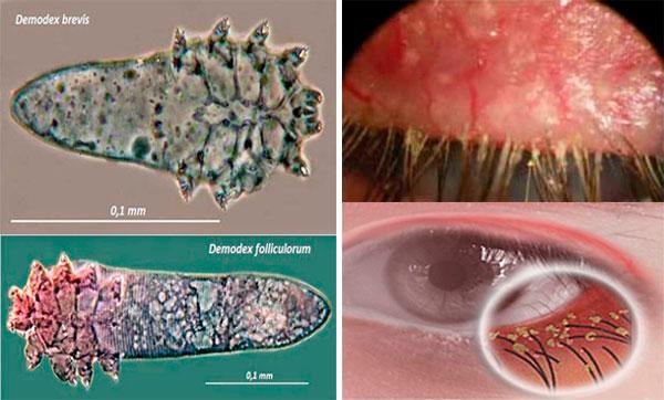 Подробный обзор жизнедеятельности ресничных клещей: что такое, благоприятная среда для развития, способы заражения, диагностика, лечение и как не заразиться