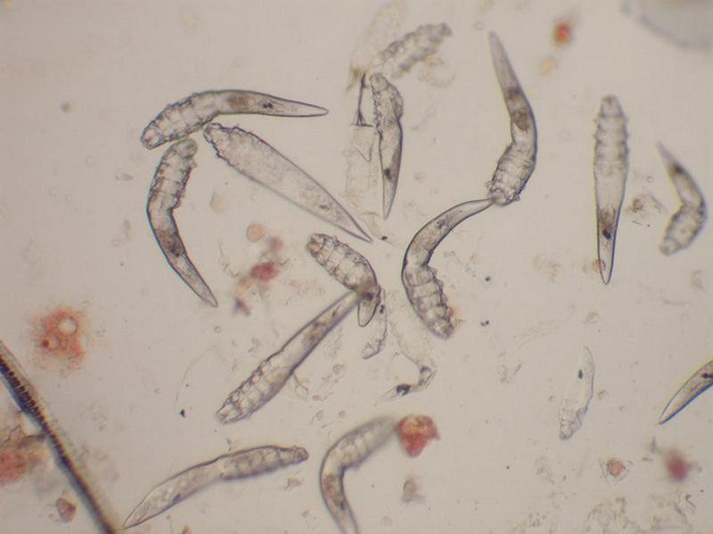 Откуда появляется и как лечиться от подкожного клеща: описание паразита, жизненный цикл, причины заражения, как определить, эффективные средства лечения