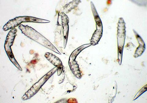 Инструкция что делать при угревой железнице (Demodex folliculorum): что это, кто возбудитель паразит, симптомы, как определить и лечить, профилактика