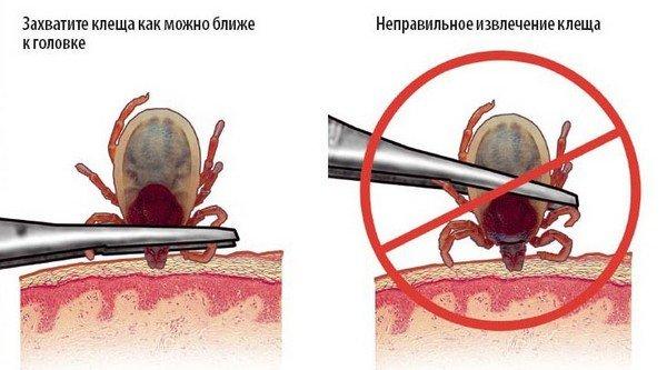 Обзор возможных последствий укуса клеща: когда проявляются, частые симптомы, что делать и как лечить